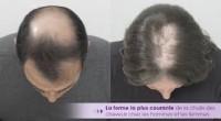 chute de cheveux homme femme